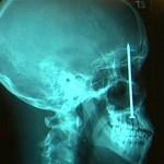 Сумасшедшие хирургические операции-1