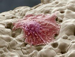 Кости усыпляют раковые клетки